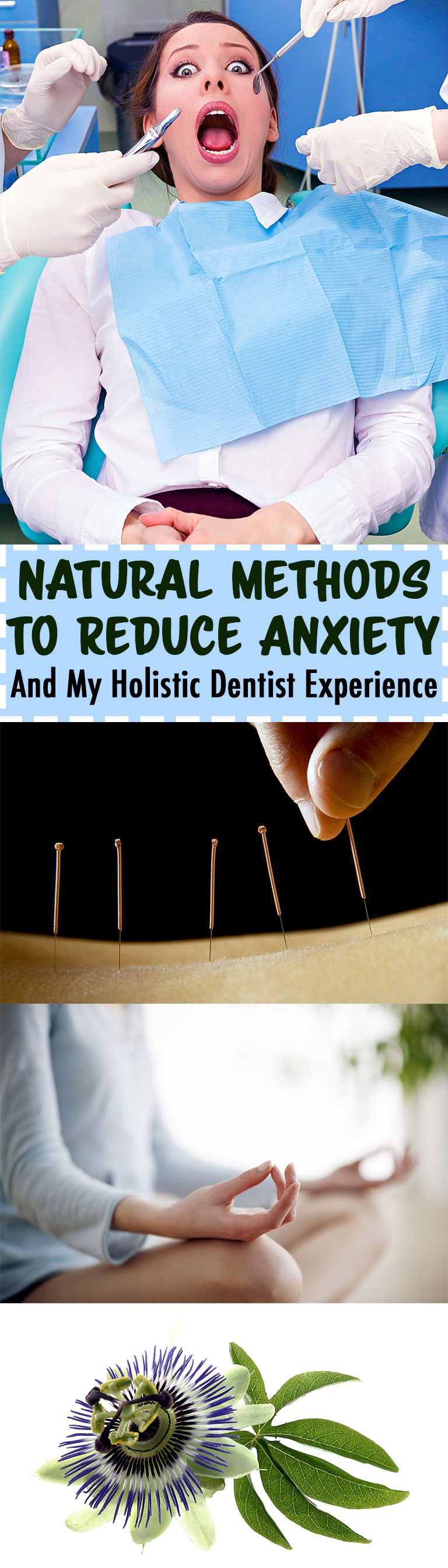 Natural Methods to Reduce Anxiety + My Holistic Dentist Experience // TheCuriousCoconut.com