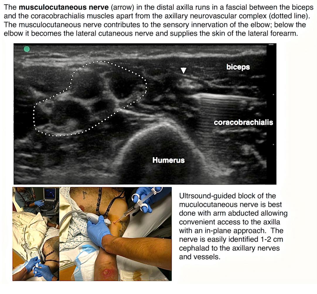 Ultrasound Guided Block For The Medial Forearm Highland Em