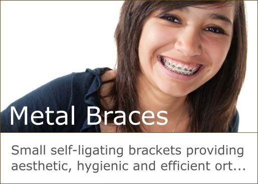 SPEED braces are small brackets providing aesthetic, hygienic and efficient orthodontics.