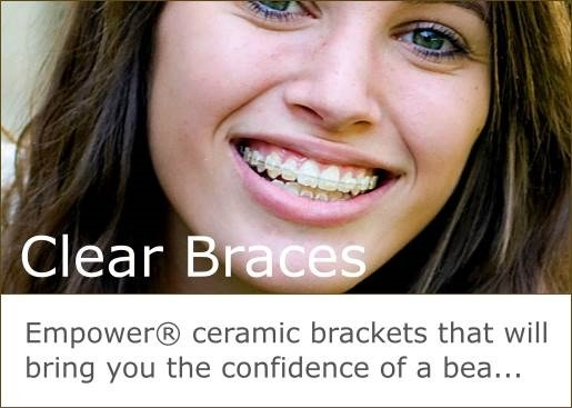 Empower ceramic brackets bring the confidence of a beautiful smile.