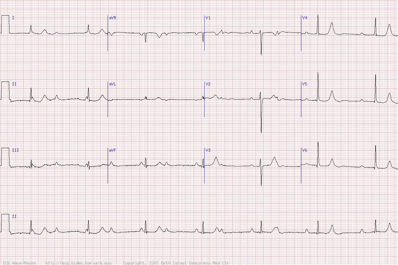 What Is Svt >> ECGs / EKGs — the simtech
