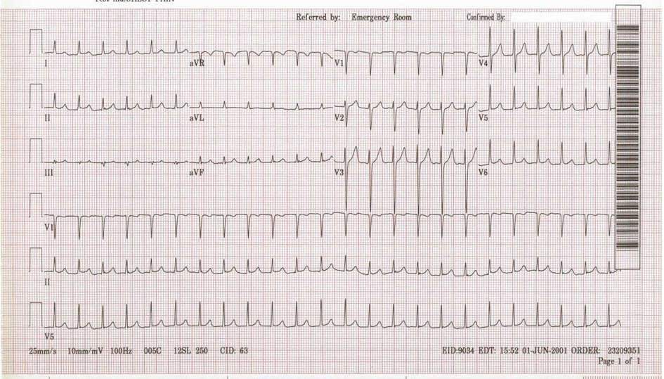 supraventricular tachycardia svt - [voiceover] supraventricular tachycardia also known as svt refers to an abnormally high heart rate the prefix supra means above so supraventricular means above the ventricles.