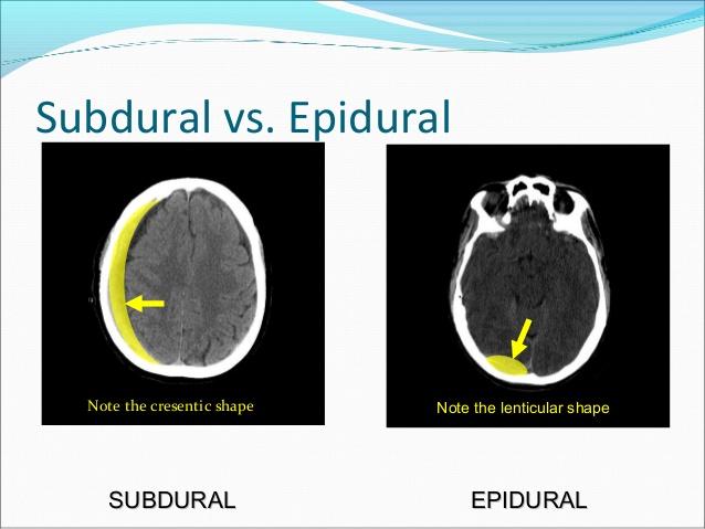 sub vs epi