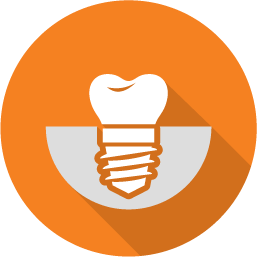 Dental implants by Dr. Lazar at Advanced Dentistry