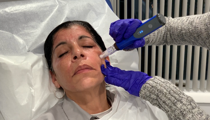 PRP Facial | Platelet-Rich Plasma Facial with Microneedling